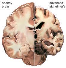 Alzheimers Brain.jpg