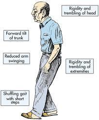 Parkinsons Disease.jpg